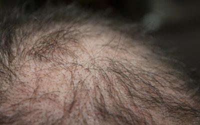 Les facteurs qui ont un impact sur le coût d'une greffe de cheveux ?