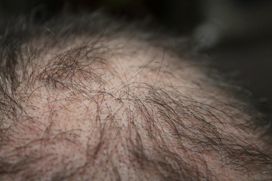 Les facteurs qui ont un impact sur le coût d'une greffe de cheveuxLes facteurs qui ont un impact sur le coût d'une greffe de cheveux